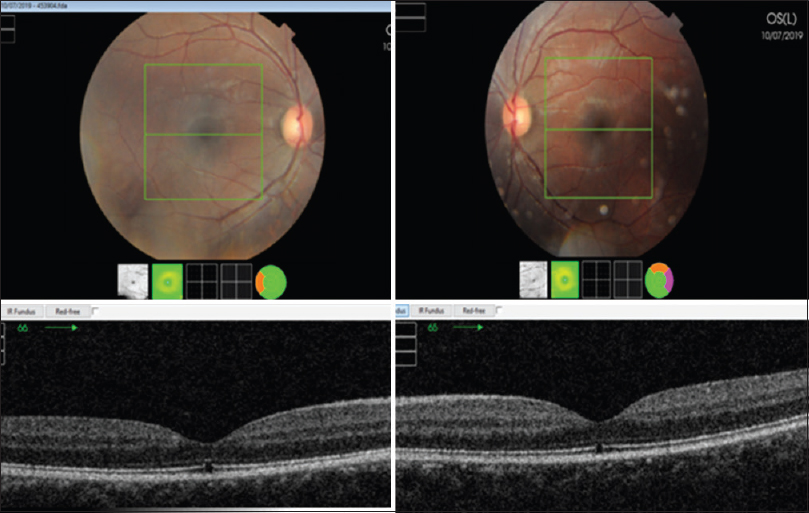 Figure 2: Optical coherence tomography/fundal photograph of index patient at 1 month follow-up with slightly blurry left fundal photograph due to anterior segment inflammation. Both fundi showed the disappearance of foveal yellow spot. Optical coherence tomography demonstrated the full-thickness defects of the photoreceptors' inner segment/outer segment junction and overlying external limiting membrane hyperreflectivity in both eyes